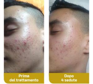 trattamento-acne