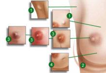 tumore seno