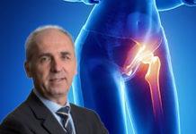 Buompadre anca artrosi